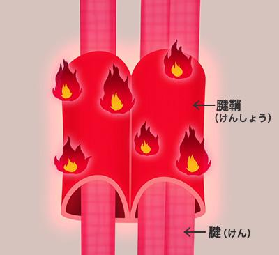 腱鞘炎 図